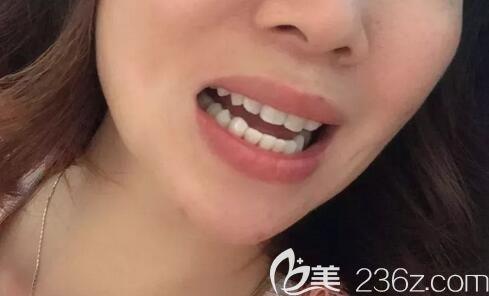 郑州哪个口腔医院做正畸好?分享我34岁在德正口腔做金属托槽牙齿矫正的成功经历