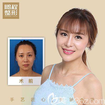 深圳鹏程医院郝剑杰全面部线雕提升案例