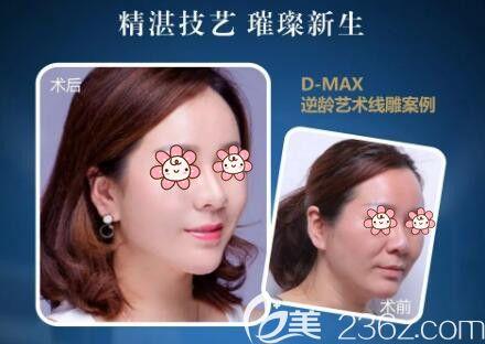 D-MAX逆龄艺术线雕真人前后对比照