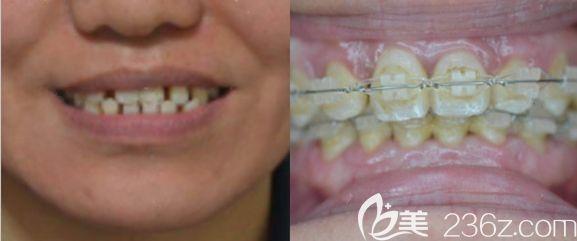 20岁的我牙齿稀疏牙缝大,选择在哈尔滨优诺博士口腔做陶瓷托槽半隐形牙齿正畸来改善