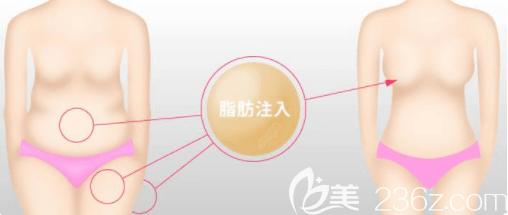 北京自体脂肪丰胸示意图