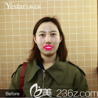 上海艺星医疗美容医院傅金萍术前照片1