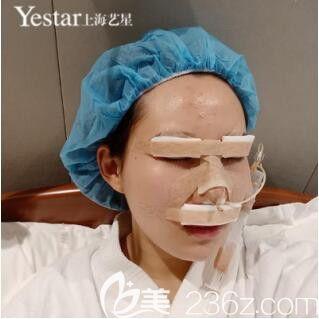 上海艺星傅金萍切开双眼皮+Ys立挺鼻整形+假体丰下巴真人案例术后第3天