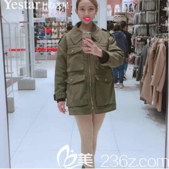 上海艺星傅金萍切开双眼皮+Ys立挺鼻整形+假体丰下巴真人案例术后30天