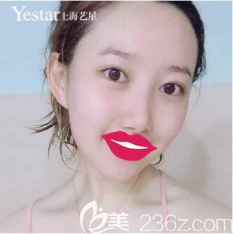 上海艺星医疗美容医院傅金萍术后照片1