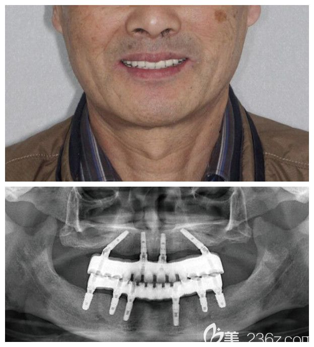 苏州种牙哪家好?这里有苏州牙博士口腔all-on-6全口/半口种植牙真人案例供参考