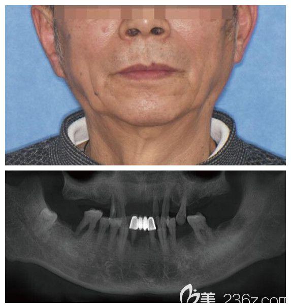牙博士口腔半口牙即刻负重种植前