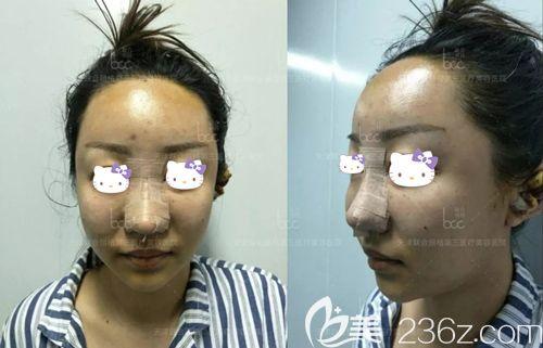 刘容嘉医生做自体脂肪面部填充术后即刻