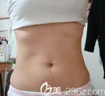 我在柳州医美整形做腰腹部环形吸脂30天