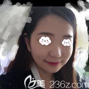武汉爱思特(原伊美尚)医疗美容医院张岚术前照片1