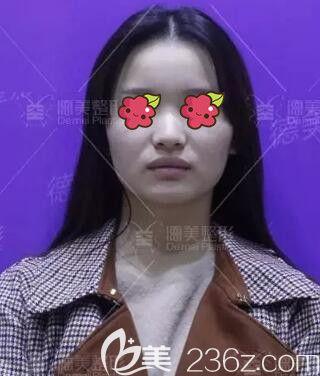 邵阳德美医疗美容诊所李倩术前照片1