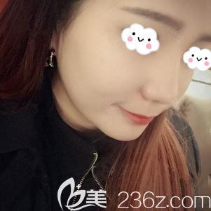武汉爱思特(原伊美尚)医疗美容医院张岚术后照片1