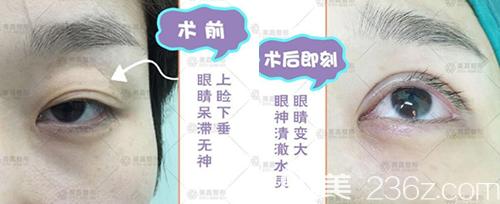 鹰潭美嘉胡文瑜医生全切双眼皮+无痕开眼角真人案例效果对比图