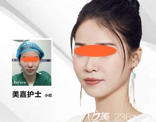 鹰潭美嘉胡文瑜立秀膨体隆鼻+耳软骨垫鼻尖真实案例效果