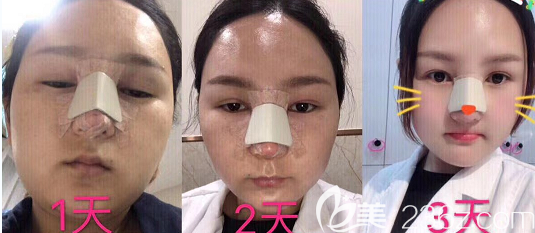 青岛艾菲医疗美容门诊部鼻综合术后第3天