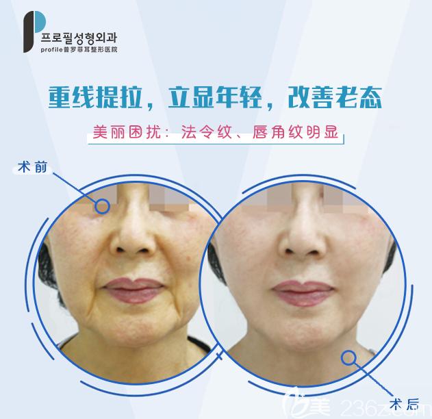 韩国普罗菲耳profile朴明旭线雕案例前后效果对比图