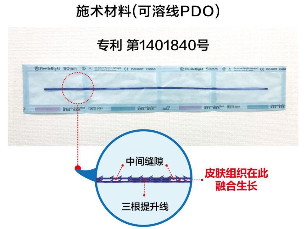 韩国profile医院朴明旭院长线雕核心技术