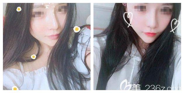 看过闺蜜在苏州紫馨做的鼻子自然不假,我也面诊医生做了韩式假体威宁二段综合鼻整形