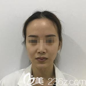 石家庄天宏医疗美容医院张学雷术前照片1