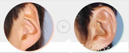 国内耳朵整形哪里好?请看长春姬安娣招风耳等耳部缺陷整形案例效果