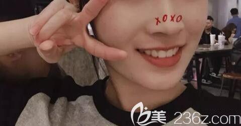 我在武汉仁爱口腔做上门牙前凸矫正的时候,选择的医生是武大口腔的潘少群教授,现在417天下牙套来晒图