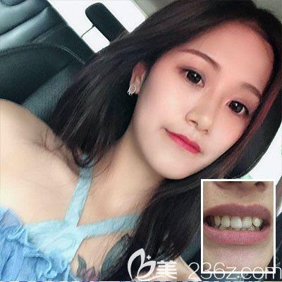 东莞壹加壹口腔医院隐形牙齿矫正案例