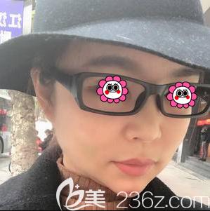 北京磨骨手术多少钱?我在北京煤炭总医院找汪济广做下颌缘磨骨价格和效果公布