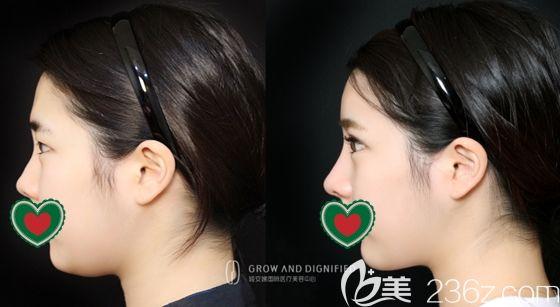 上几张在长春姬安娣整形做全脸自体脂肪填充,外加鼻综合和切开双眼皮大改造后的效果图