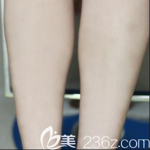 北京激光脱毛哪家好?我在北京丽都找梁春霞做激光脱腿毛效果告诉你