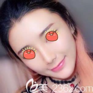 相中海宁时光冯辉利医生做了自体脂肪填充脸部,达到了想要的效果