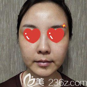 武汉美基元医疗美容医院李莎术前照片1