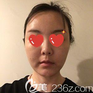 李莎主任帮我做射频紧肤术后1天脸部肿胀