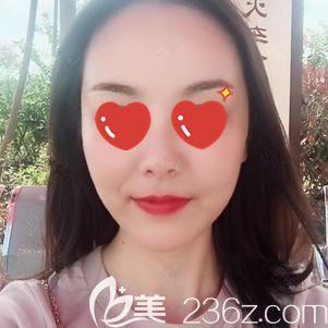 武汉美基元医疗美容医院李莎术后照片1