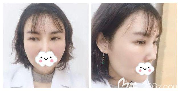 担心外切去眼袋会眼睑外翻?留疤?复发?看过我在南京华韩奇致做的去眼袋就知道专业医生不会出现以上副作用