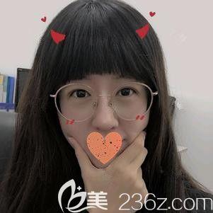 前段时间我在郑州华领做全切双眼皮+开内眼角手术 现在恢复28天就由三角眯眯眼瞬变妩媚大电眼