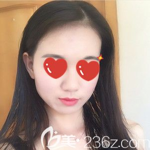 网友说做埋线提升项目后一定会后悔,但我在武汉爱思特找胡可斌做术后89天脸部紧致效果好