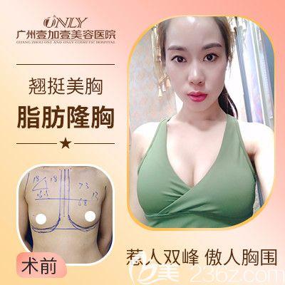 广州壹加壹项美莲做的自体脂肪隆胸案例