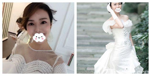 本身就是扇形双眼皮但却有显老眼袋的我到南京艺星做了内切去眼袋+假体隆鼻 术后半年做美丽新娘
