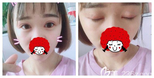 5组照片告诉你为什么我到苏州紫馨做了双眼皮+开眼角眼综合之后又去做了激光美肤+瘦脸针