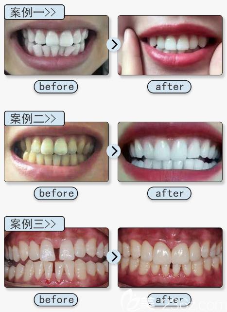广州壹加壹口腔医院苏文新医生三组隐形牙齿矫正案例