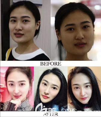 深圳阳光整形医院罗志敏肋软骨鼻综合隆鼻案例照片