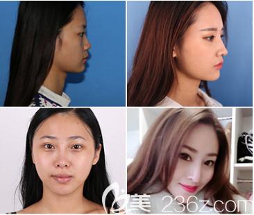 深圳阳光罗志敏修复鼻子的案例照片