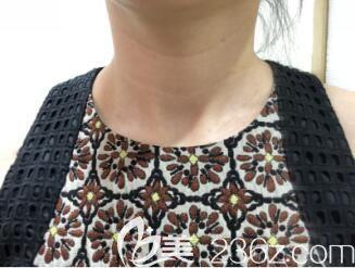 上海华美张琳琳微针去颈纹真人案例术后第7天