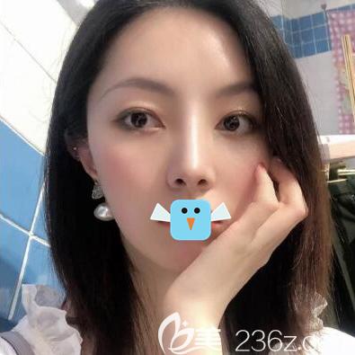 想知道四川成都友谊医院向朝医师做鼻子怎么样的宝宝来看看我的鼻综合术后恢复照片吧