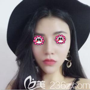 北京京韩自体脂肪隆鼻效果评价看着不错面诊张振后我做了鼻综合手术