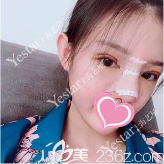 上海艺星唐毅做眼综合+鼻中隔+耳软骨+膨体隆鼻真人案例术后第6天