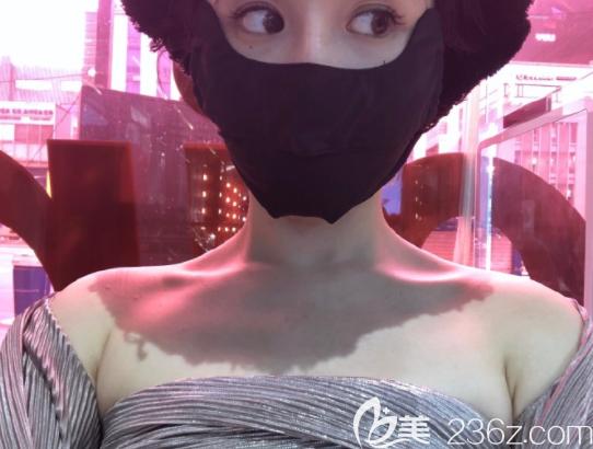 韩国明洞TATOA太朵皮肤科医院崔东俊术后照片1