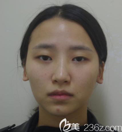 韩国清潭first整形外科成镇模术前照片1