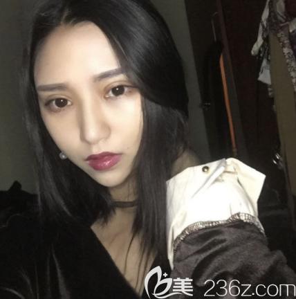 韩国清潭first整形外科成镇模术后照片1