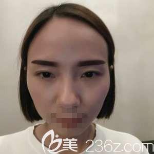 郑州华领医疗美容医院屈琳丽 术后照片1
